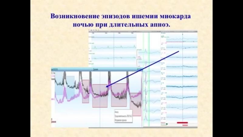 «Холтеровское мониторирование электрокардиограммы_ что нового» (Часть третья) [360p]
