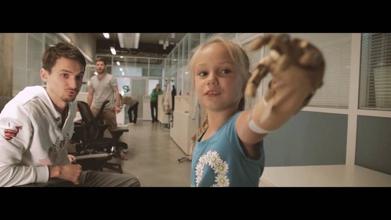 Детские игровые протезы Киби - изменение культуры протезирования в России (Eng subs)