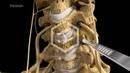 C5-c6-c7 Anterior Cervical Discectomy with Fusion