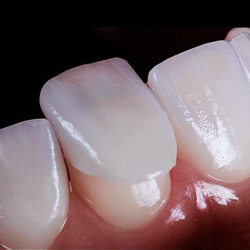 Установите современные виниры на зубы и вы поймете, как изменится мнение окружающих о вас!