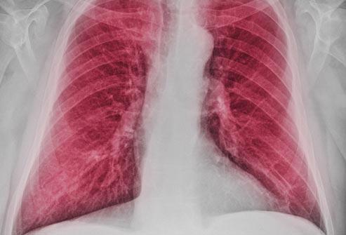 Что такое заболевание пневмокониоза?