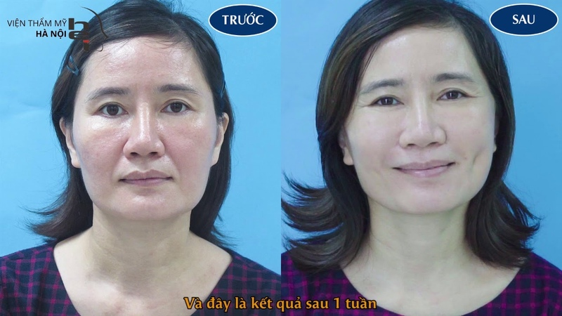 Căng da mặt cằm cổ - Tạo má lúm đồng tiền - Viện thẩm mỹ Hà Nội