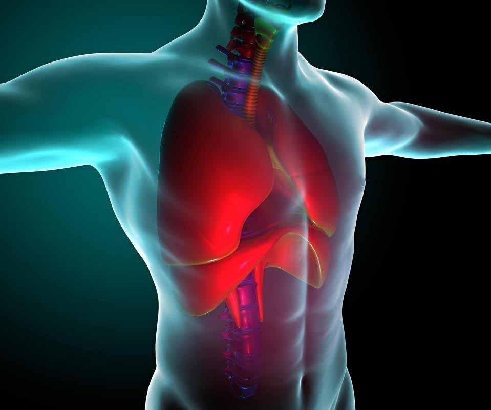 Что такое кистозный фиброз?
