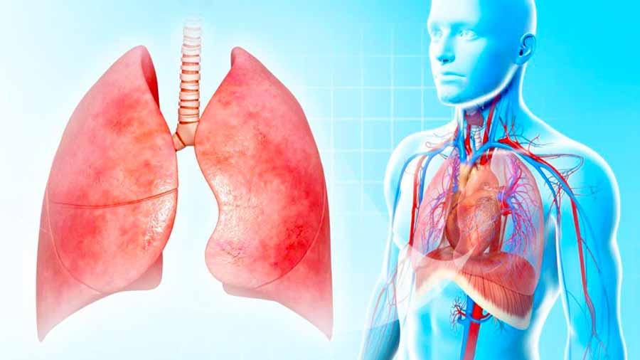 Что такое воспаление легких?