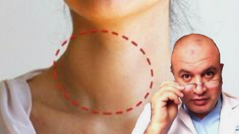 Йододефицитные расстройства, эндемический зоб и болезни мозга