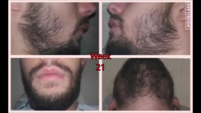 Миноксидил для бороды - ДО ПОСЛЕ РЕЗУЛЬТАТ за 9 месяцев
