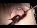 Мандибулярная анестезия. Техника