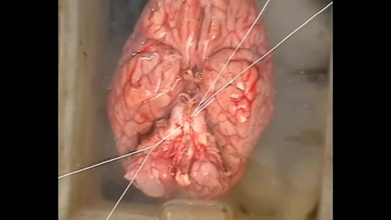 Изъятие и исследование головного мозга