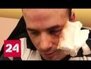 Разъяренный автохам избил инвалида на сочинской трассе - Россия 24