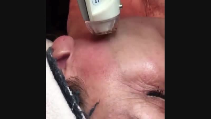 Процедура полного обновления кожи лица на аппарате eTwo