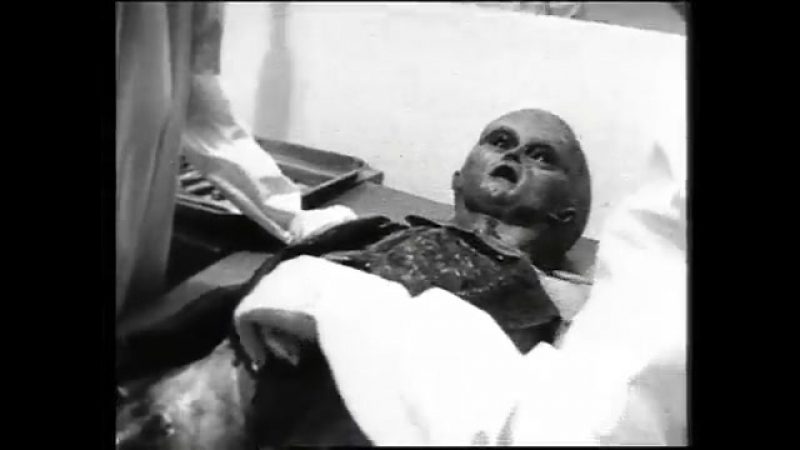Famous Roswell Alien Autopsy Video