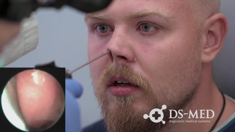 Эндоскопия при помощи Dr. Camscope на ЛОР-комбайне UE-3000 (полный ролик)