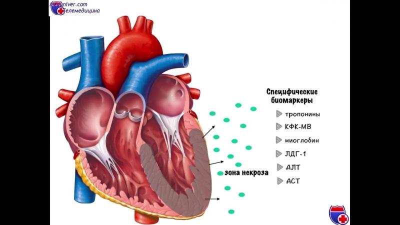 Лабораторные показатели крови при инфаркте миокарда - meduniver.com