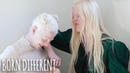 The Besties With Albinism BORN DIFFERENT