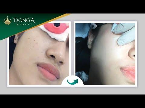 Cách điều trị tàn nhang tận gốc trên mặt bằng Laser
