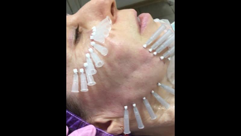 Моно Нити 💥Профилактика старение плотный каркас уплотнение кожи устранение мимических морщин BIO армирование