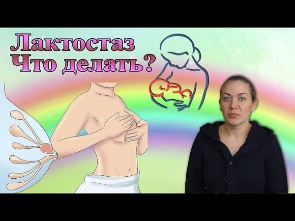 Лактостаз груди у кормящей мамы. Рекомендации и решения. Анюта Журило