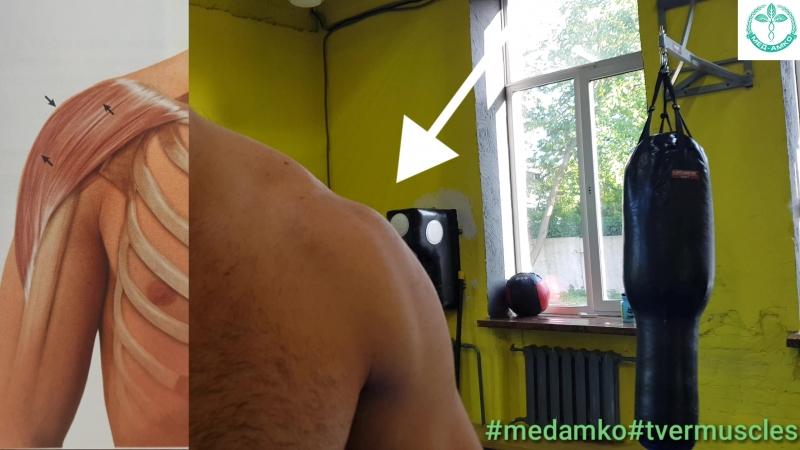 Дельтовидная мышца ключичная часть