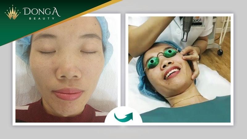 """Cận cảnh điều trị nám da mặt lần 1 cho """"Hotmom"""" Trần Vân"""