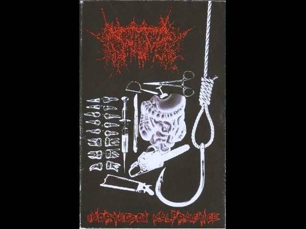 Vomitoma - Unorthodox Malpractice (Demo) [2008] (Full)