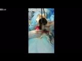 В Казахстане из желудка 12-летней девочки извлекли гигантский ком волос. Всё из-за того, что она несколько лет проглатывала конч