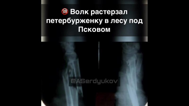 В НИИ скорой помощи им. Джанелидзе спасают 76-летнюю петербурженку. В псковской деревне на нее напал волк