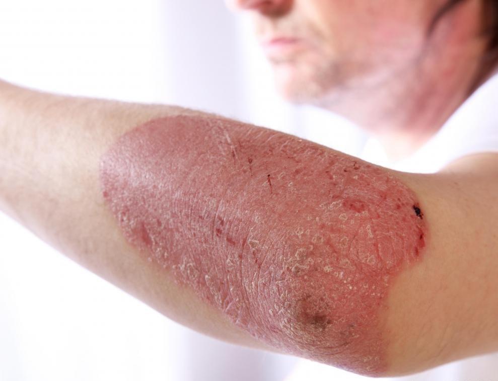 Псориаз - это заболевание кожи, характеризующееся зудящими красными пятнами кожи, которые часто чешуйчатые.