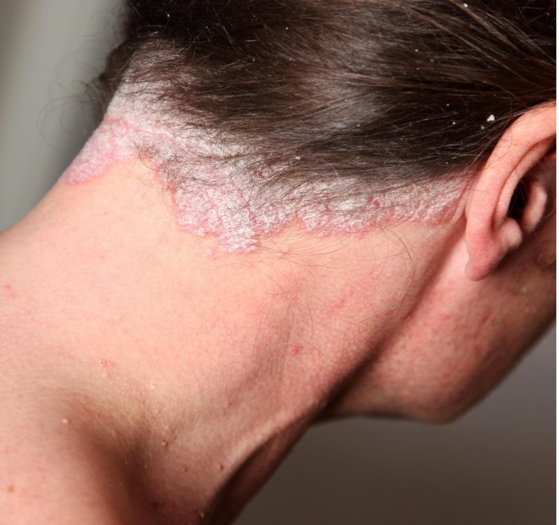 Псориаз поражает кожу по всему телу.