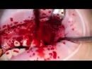 Артериальное кровотечение из ветки верхн й артерии (360p).mp4