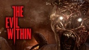 I'M DOING BRAIN SURGERY The Evil Within Gameplay Part 3
