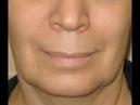 Простые упражнения чтобы подтянуть брыли и восстановить овал лица