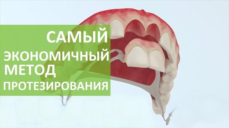 Бюгельный протез. 👐 Преимущества установки бюгельного протеза на кламмерах. ROOTT. 12