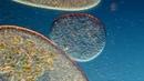 External Vacuole Formation in Paramecium aurelia. 250-1000X. DIC Lighting