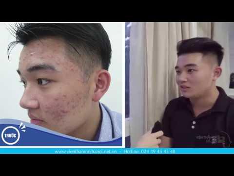Điều Trị Sạch Mụn Trứng Cá - Tiến sĩ, Bác sĩ Nguyễn Thế Vỹ