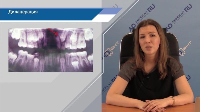 Наталья Малахова - Резорбция корней зубов, когда это важно, а когда это страшно. (часть 3)Ортодонтия.