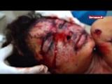01 - Saudi-US terror against Yemen (08.08.2018)