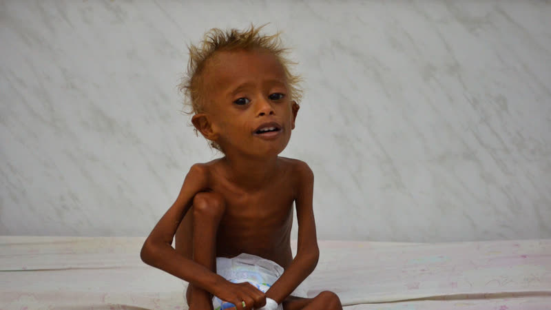 14 million at risk of starvation Famine threatening Yemen 'worse than previously estimated'