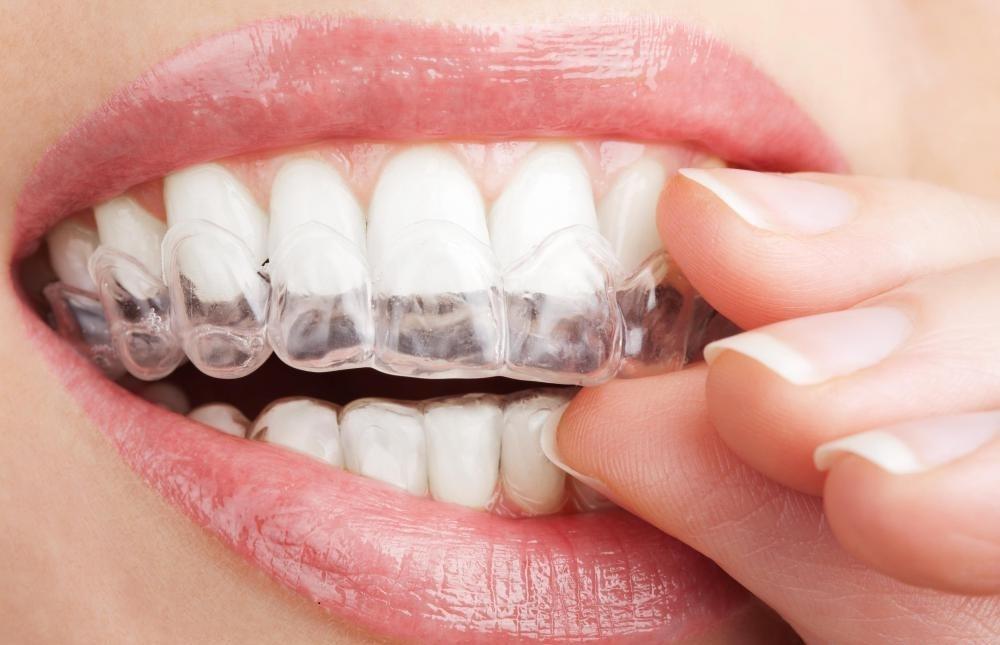 Изогнутые лотки, заполненные отбеливающим гелем, могут быть компонентом системы отбеливания зубов на дому.