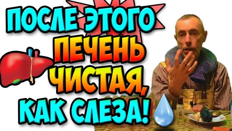 ПОСЛЕ ЭТОГО ПЕЧЕНЬ ЧИСТАЯ КАК СЛЕЗА Виталий Островский Очищение печени холецистит газы