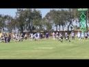 Lance Lenoir vs Byron Jones CowboysCamp Day 4