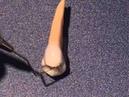 Maxillary premolar anatomy