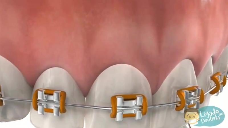 Гигиена зубов с брекет-системой