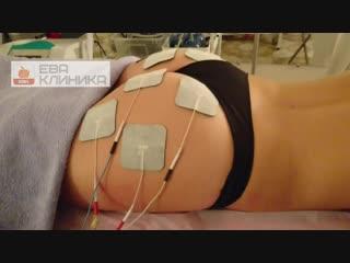 Миостимуляция в клинике Ева