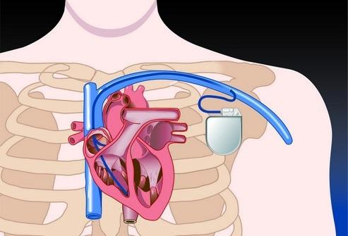 Типы кардиостимуляторов