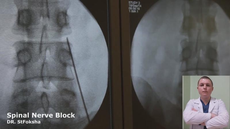 Лечение Боли   Блокада под Контролем   Spinal Nerve Block