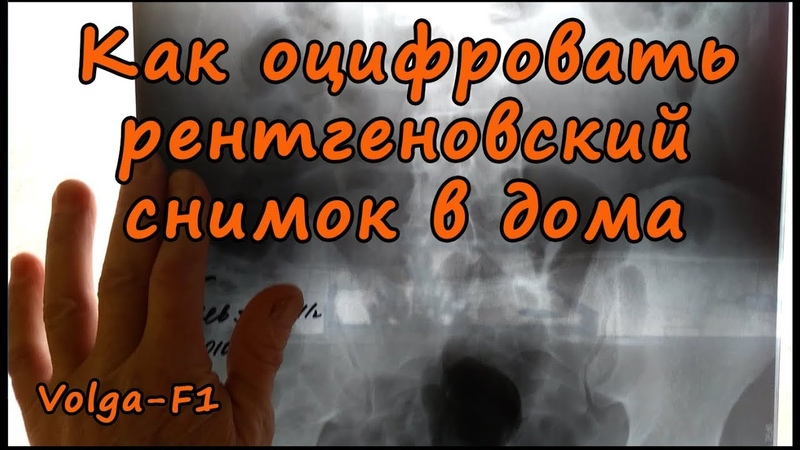 Как оцифровать рентгеновский снимок