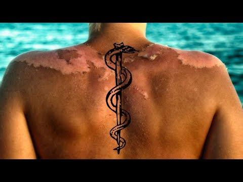 The Sunscreen Myth: Sunblock Causes Cancer