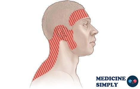 Головная боль напряжения и как ее лечить, лекарства от головной боли