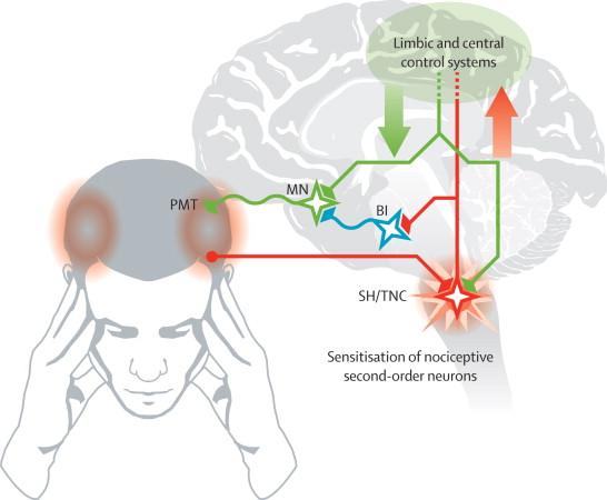 головная боль постоянно