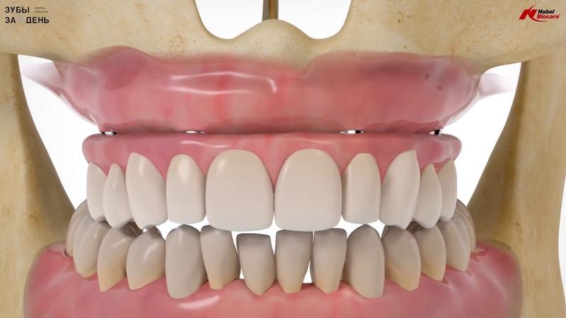 Технология All On 4 Как происходит установка протеза Сеть клиник Зубы за 1 день
